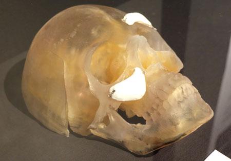 3d Kopf Implantat Foto: Diether v. Goddenthow © atelier-goddenthow