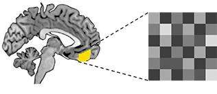 Während einer Extinktionslernerfahrung werden im Präfrontalkortex Aktivierungsmuster generiert, die in einer Ruhephase nach dem Lernen spontan wieder auftreten. Diese Spontanreaktivierungn verfestigen das Gelernte. Quelle: Dr. Anna M.V. Gerlicher