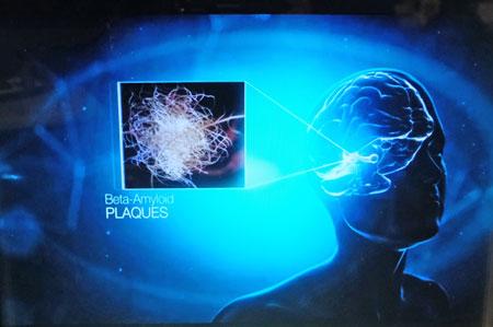 Man nimmt an, dass Eiweiße, sogenannte Plaques, sich außerhalb der Nervenzelle ablagern. Tau-Fibrillen, die normalerweise Nährstoffe zwischen den Nervenzellen transportieren, sind bei der Alzheimer-Demenz verändert. In der Ausstellung kann man auf dreidimensionale Entdeckungsreise gehen. © Foto: Diether v. Goddenthow